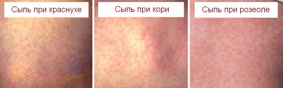 Различия сыпи с температурой при краснухе, кори и розеоле
