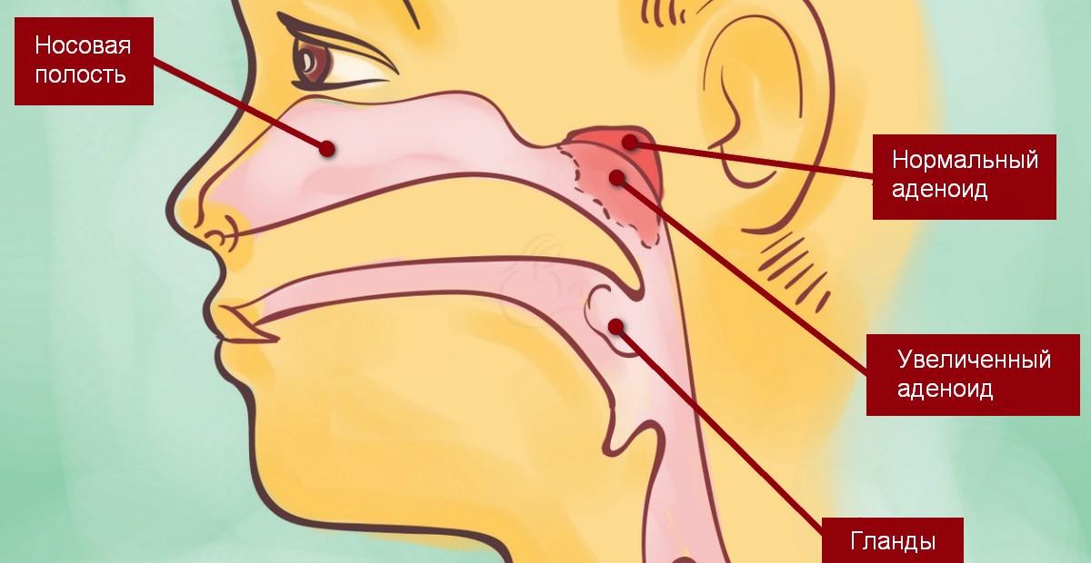 Аденоиды у ребёнка – схематичное изображение
