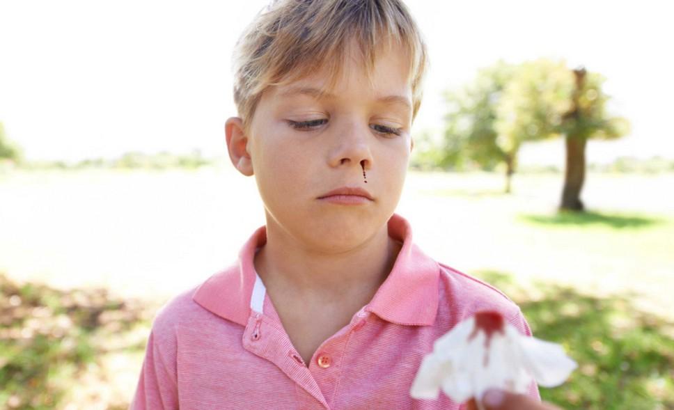 Почему при температуре у ребенка пошла кровь из носа thumbnail