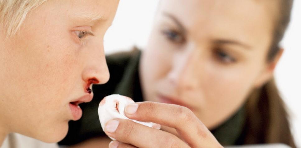 Повреждения сосудов как причина крови из носа